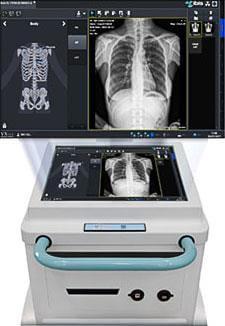 Аппарат рентгеновский мобильный MATRIX 2
